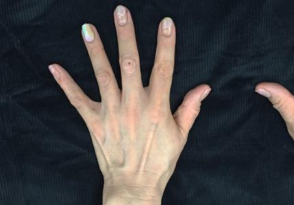 手の痩せ血管筋が目立つ