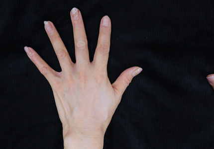 手の甲へのヒアルロン酸注射後の写真