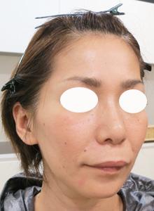 ヒアルロン酸で顔をふっくら