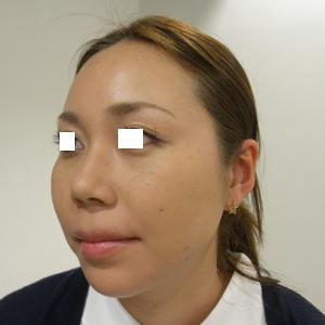 im_aft_pf_tx1_makeup.jpg