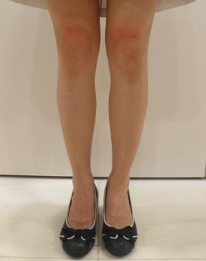 kneewrinkle2_after_20121024.jpg