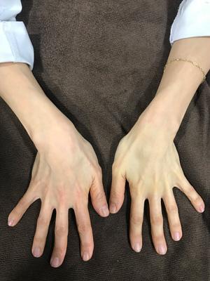 手の甲のコラーゲンピール