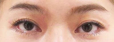 凹み目治療後の写真