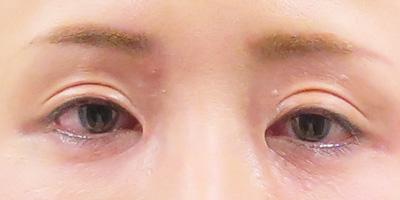 目の上のくぼみをヒアルロン酸注射で治療