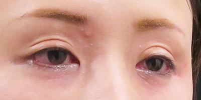 目の上のくぼみにヒアルロン酸を注射