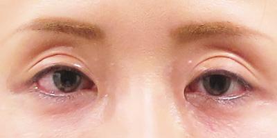 目の上のくぼみ