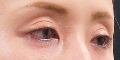 目の上の窪み治療