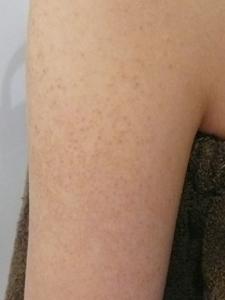毛孔性苔癬(毛孔性たいせん)