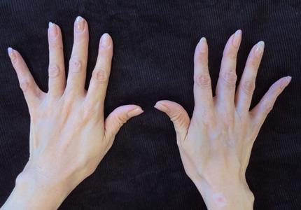 手の老化治療