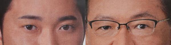 上顔面の老化