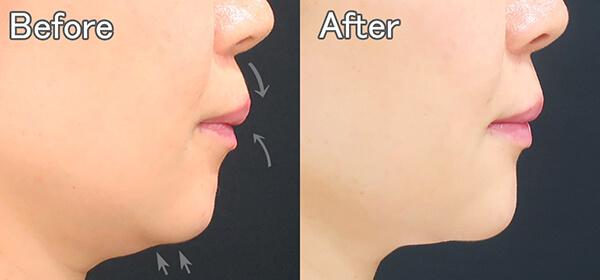 ヒアルロン酸注射による横顔の変化