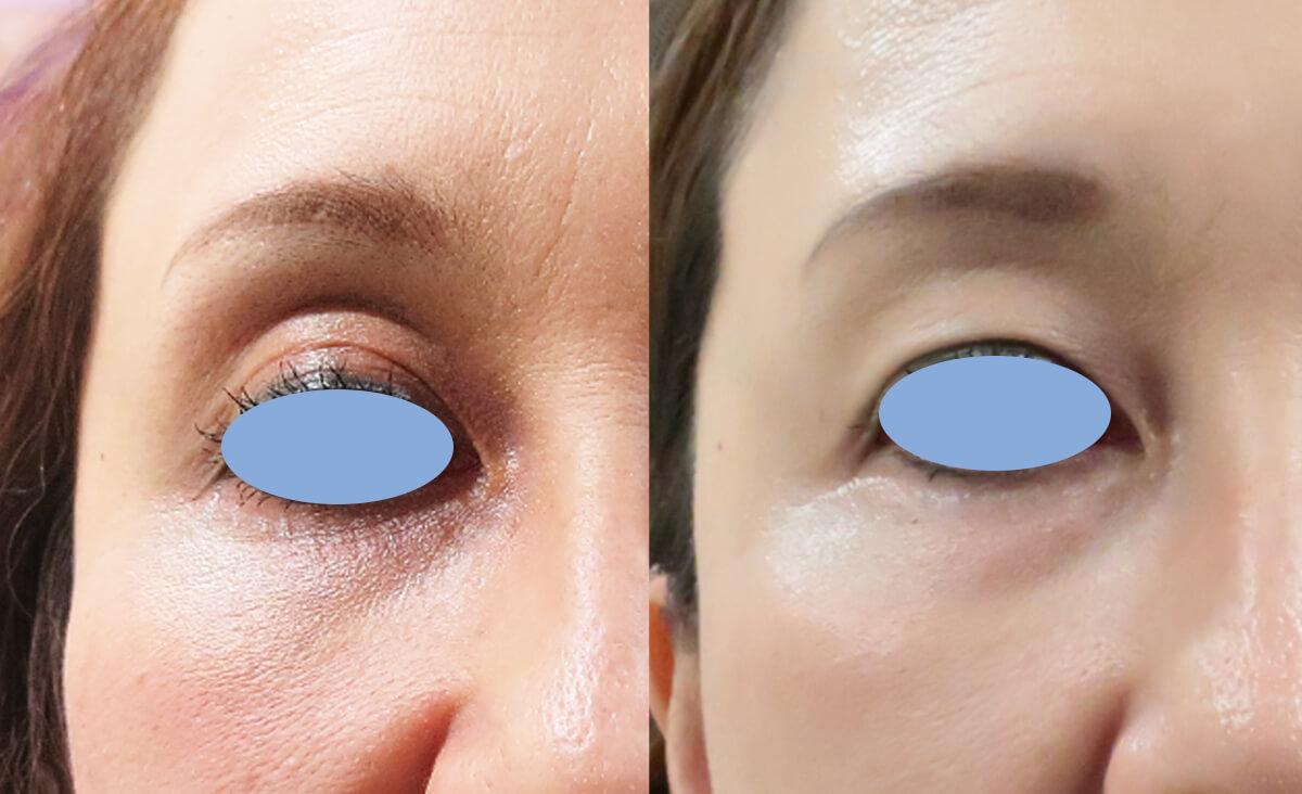 目の上のくぼみにベビーコラーゲン注射後