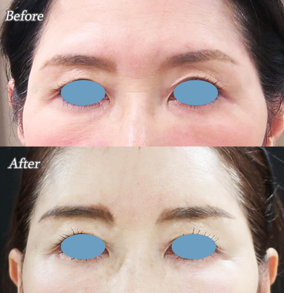 鼻の横ジワ治療