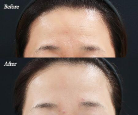 額と眉間のボトックス
