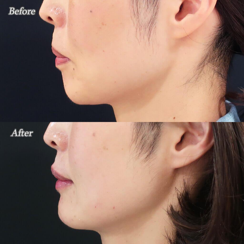 唇のヒアルロン酸注射