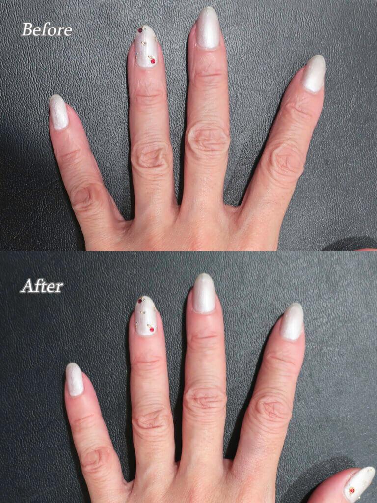 手の指ヒアルロン酸