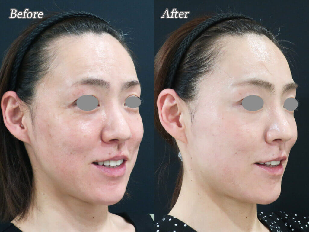 ヒアルロン酸注射ボトックス症例写真