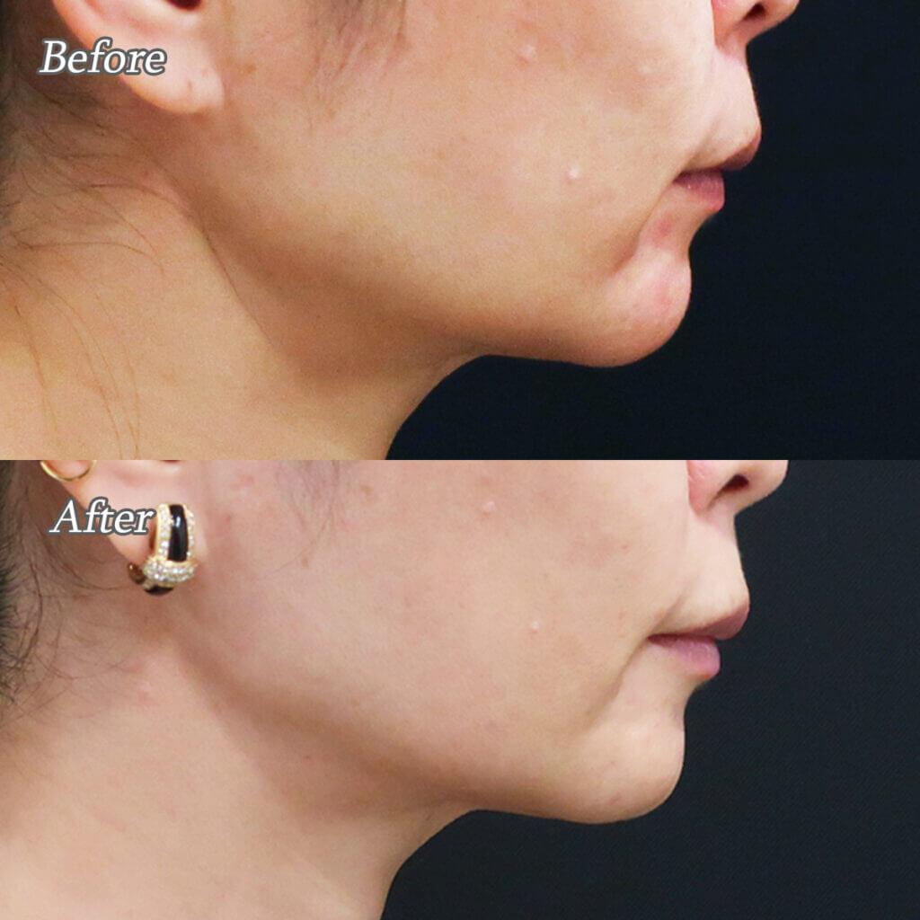 唇ヒアルロン酸注射ビフォーアフター