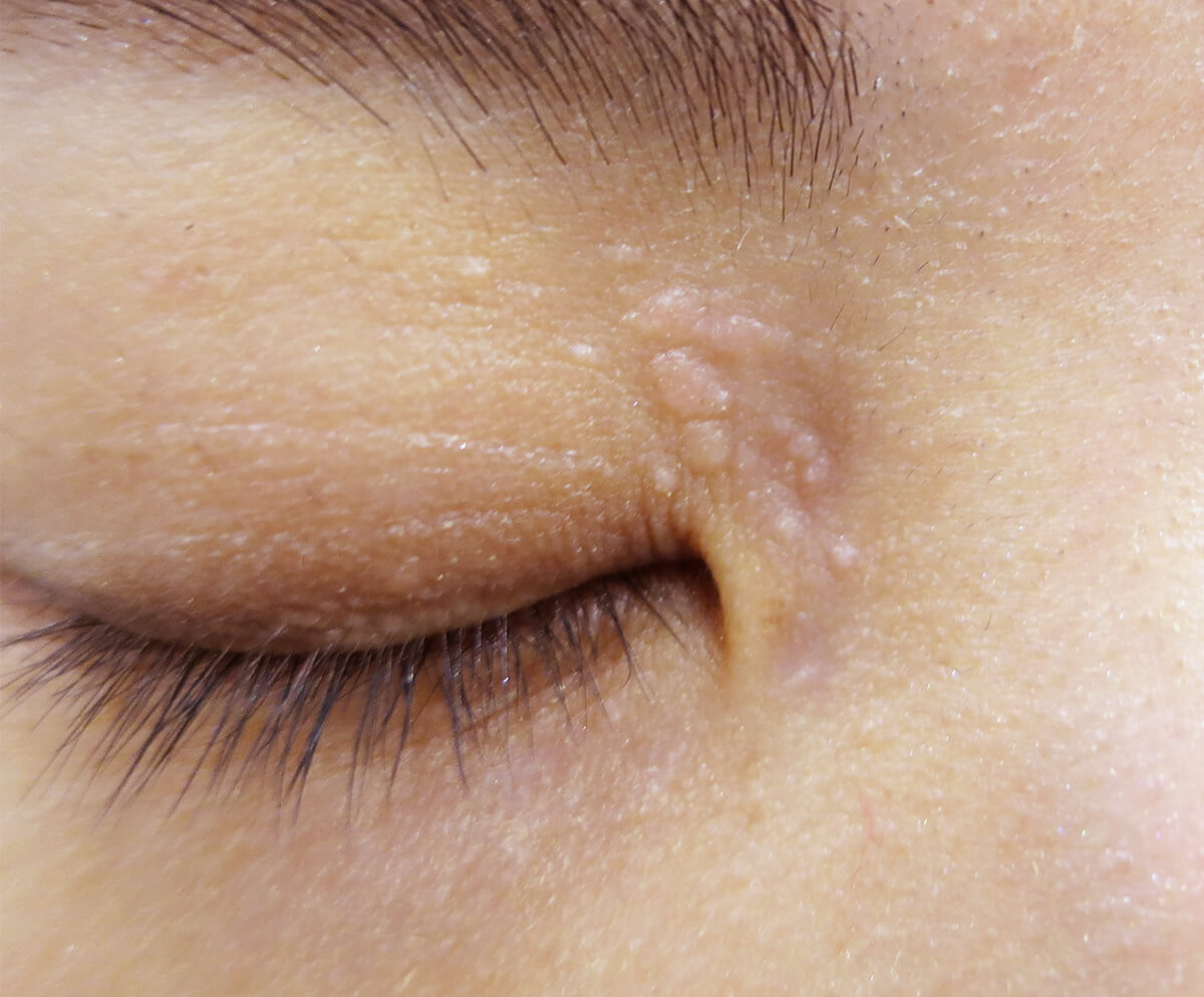 目の周りのいぼかんかん腫(汗管腫)のレーザー治療