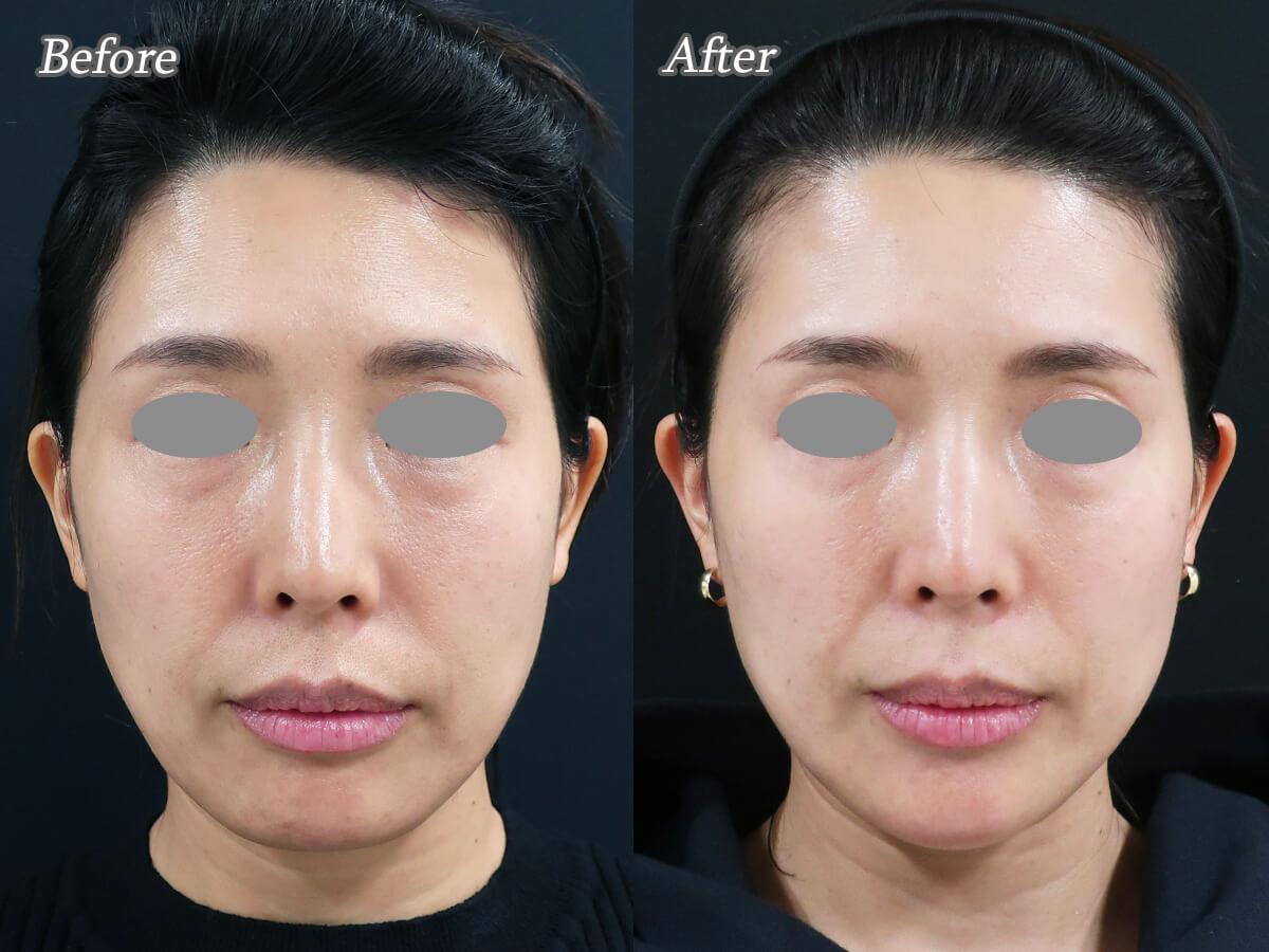 ヒアルロン酸注射で顔のたるみ治療