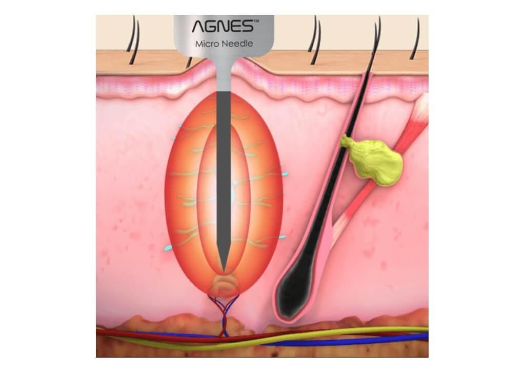 アグネスAGNESによる脂腺増殖症イボレーザー治療