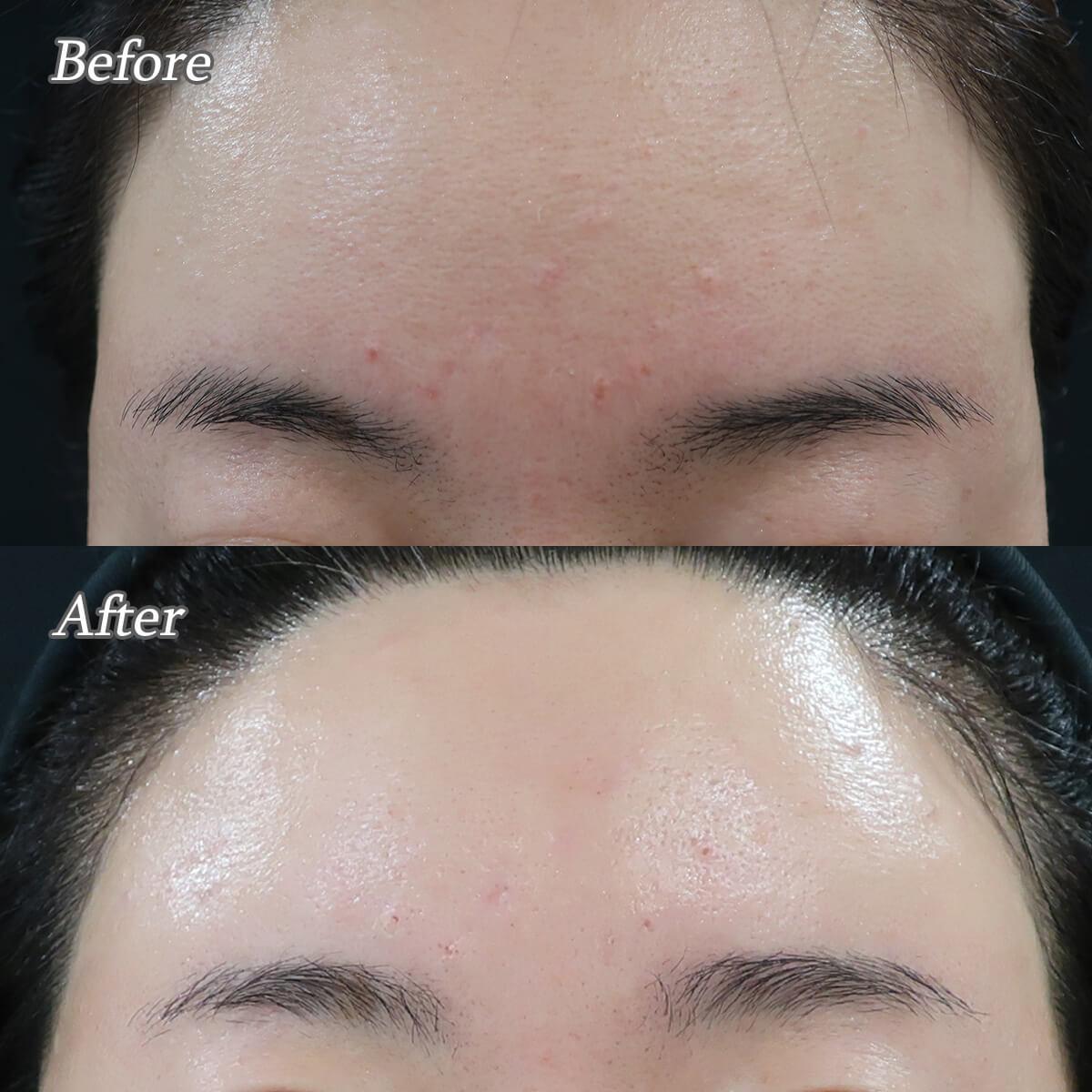 脂腺増殖症に対するアグネスAGNESの効果。1回治療ビフォーアフター写真。