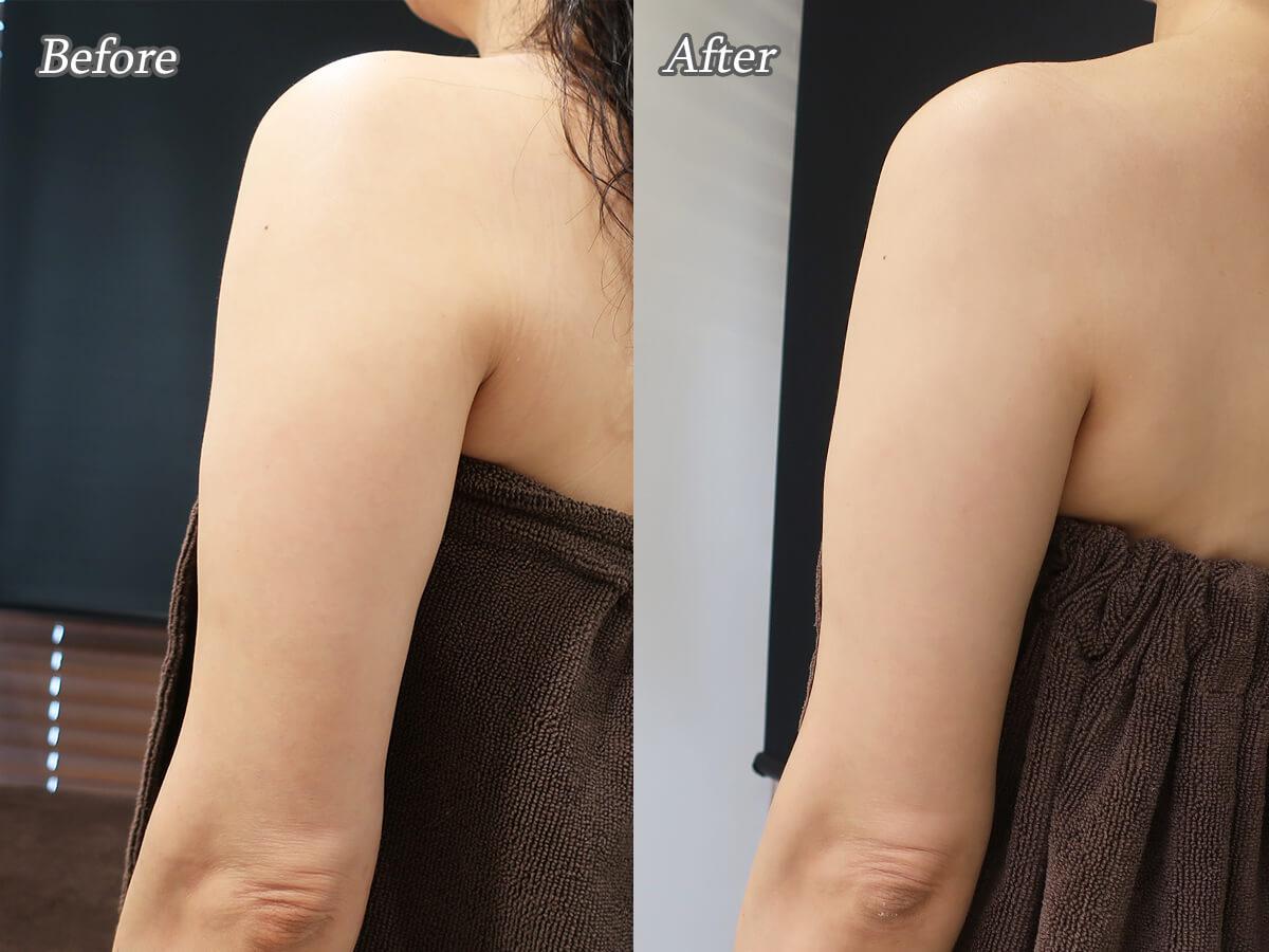 具脂肪冷却装置クリスタルで二の腕を部分痩せ