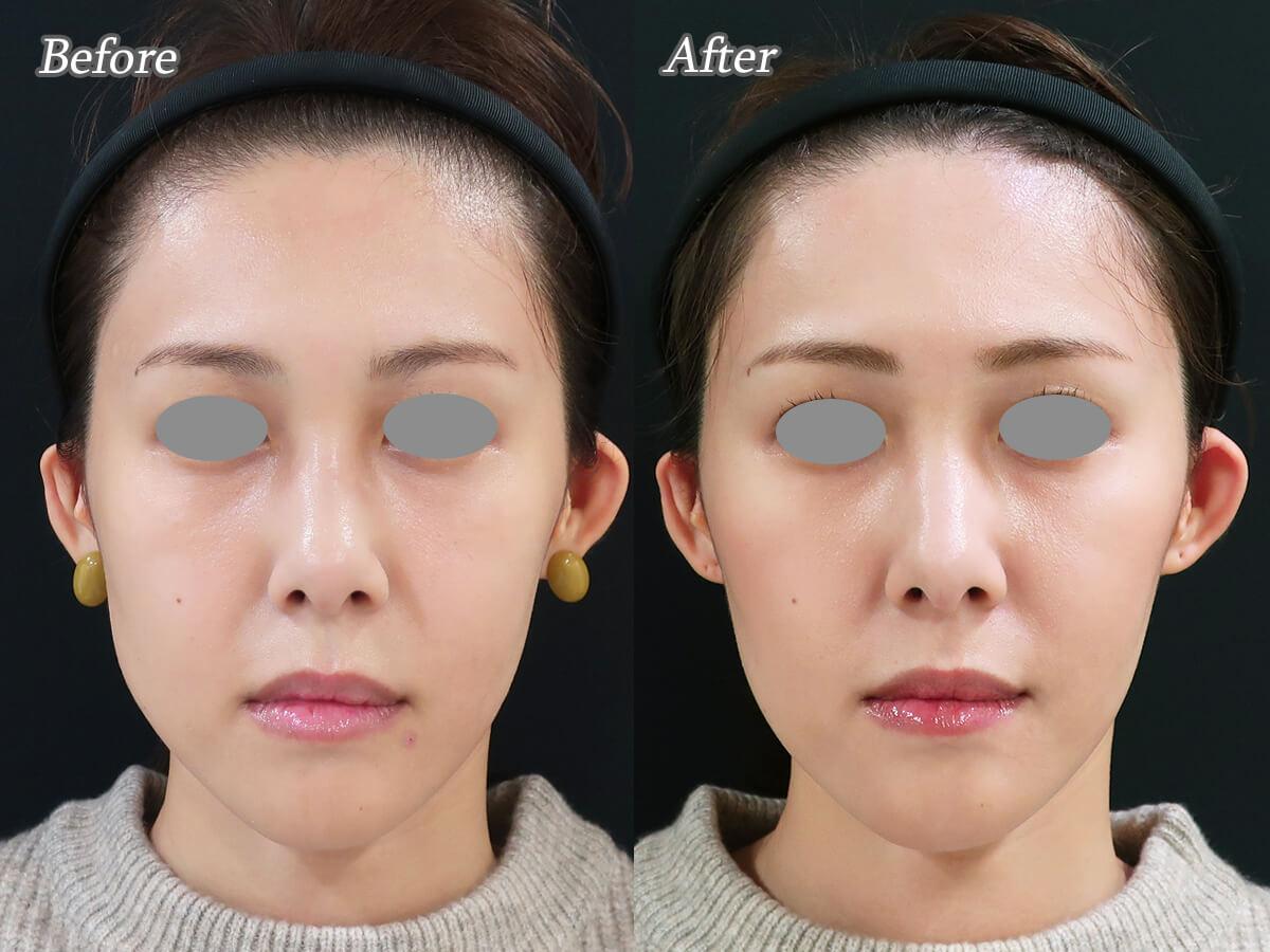 ヒアルロン酸注射で顔をシャープに整える