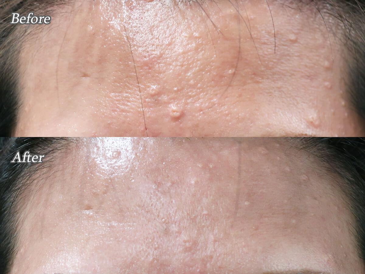 脂腺増殖症をアグネスAGNESで治療した症例写真