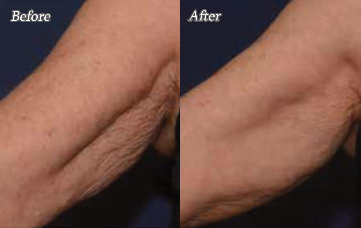 プロファイロによる腕のたるみ治療