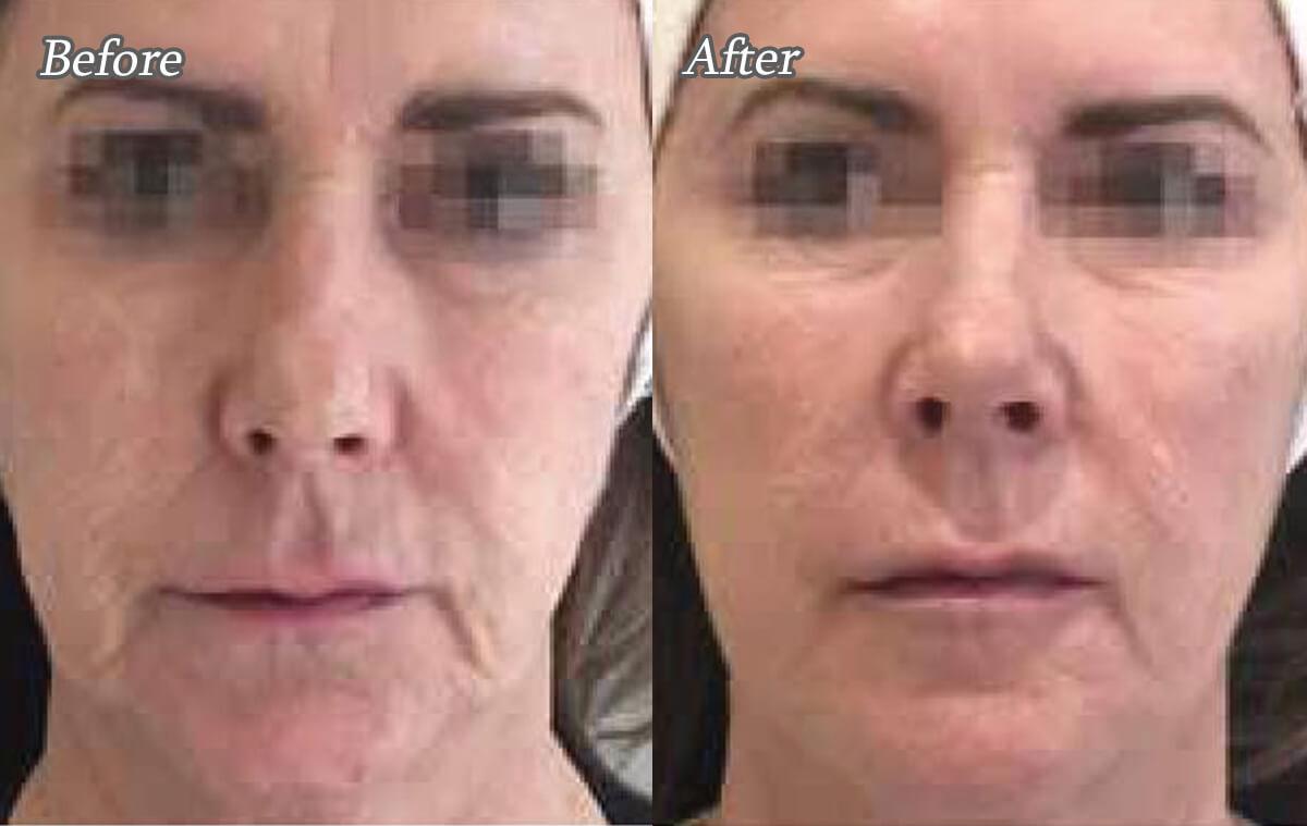 プロファイロによる美肌治療